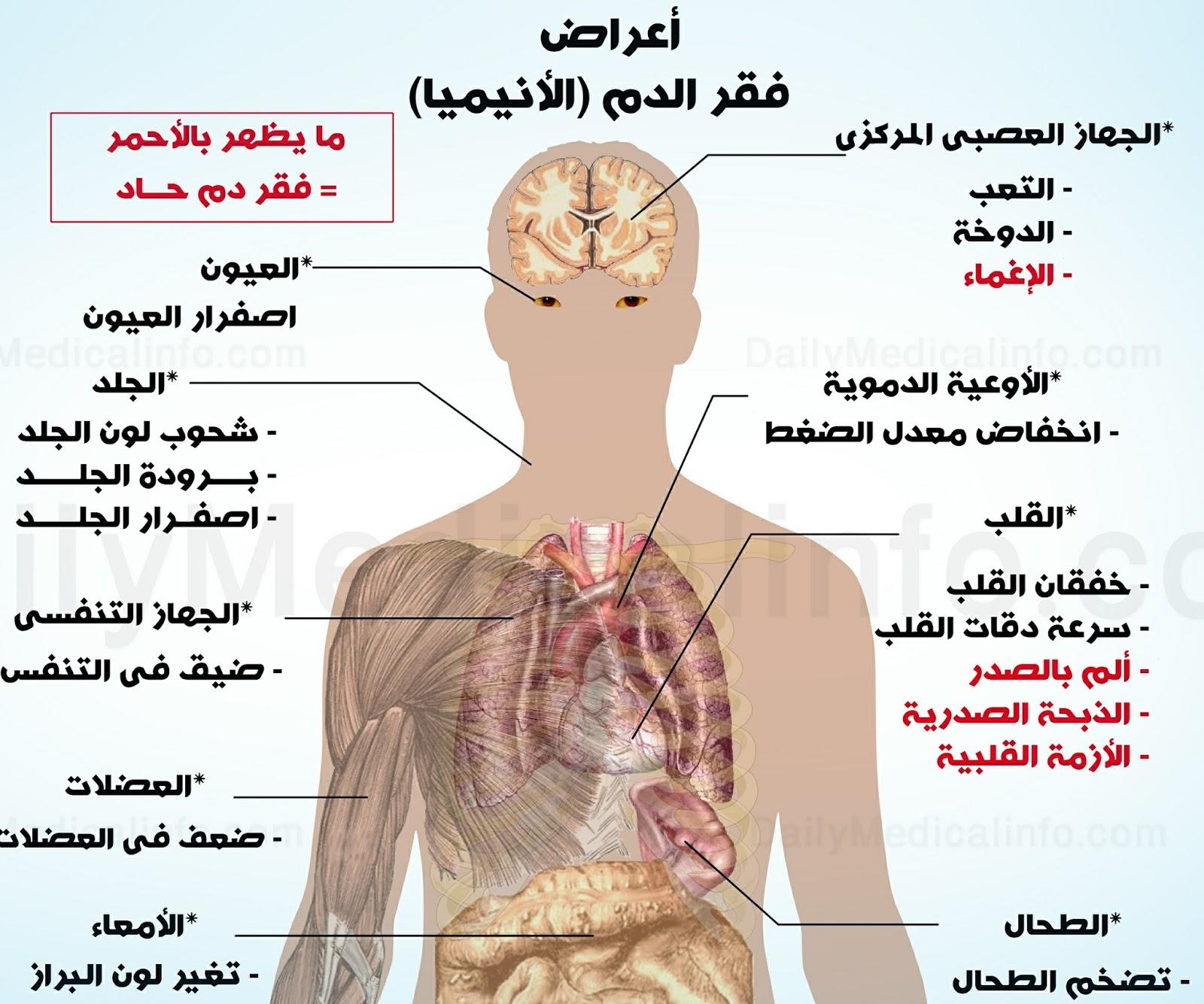 فقر الدم اعراضه